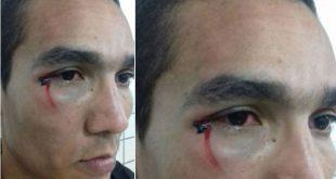 """Todos vão pagar"", afirma árbitro itapetinguense agredido no Intermunicipal"