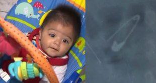 Bebê de seis meses engole alfinete aberto em MG