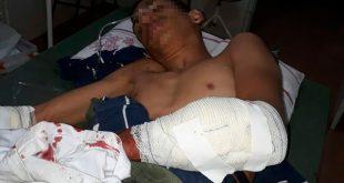 Bahia: Assaltante se assusta com a própria imagem em espelho e atira contra comparsa