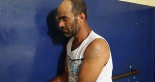 """Homem agride e queima companheira com água quente em Itabuna: """"levei gaia"""""""