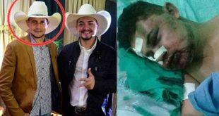 Cantor sertanejo é brutalmente espancado após vizinho flagrá-lo com sua mulher