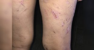 Mãe e padrasto são presos por torturar menina de 4 anos por três meses