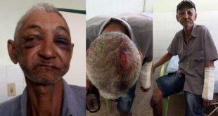 Brasil: Idoso de 70 anos é espancado a pauladas pelo próprio neto que queria dinheiro